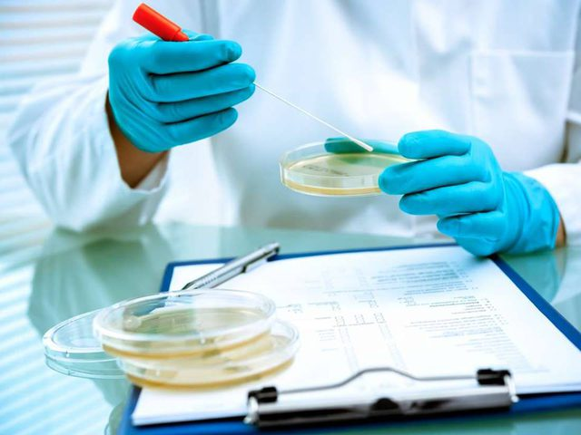 دراسة تكشف وجود ميكروب في الامعاء قد يسبب موت البكتيريا النافعة