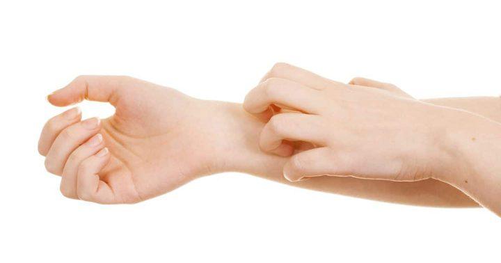 5 أشياء تحفز ظهور الأكزيما على الجلد