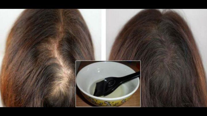 4 وصفات لعلاج فراغات الشعر بسهولة .. خلطة الزيوت