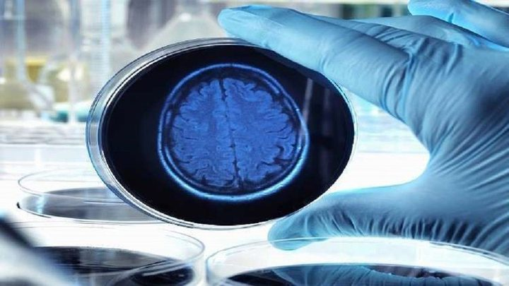 دراسة تكشف عن نظرية جديدة حول المسببات الأساسية لألزهايمر