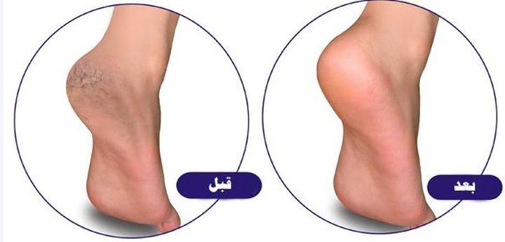 ارتدي أحذية الصيف دون قلق..وصفة طبيعية للتخلص من تشقق القدمين