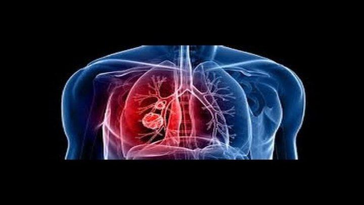 موزع سجائر يقيم دعوى ضد مشغليه بعد إصابته بسرطان الرئة