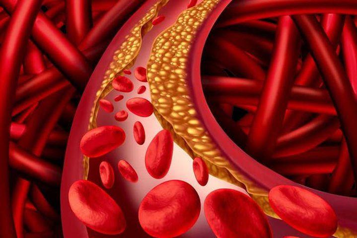 خلطة خارقة للتخلص من ارتفاع الضغط وانسداد الشرايين والكوليسترول
