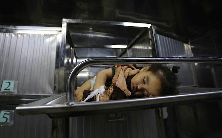 الرضيعة صبا لم تجد مكانا آمنا فنامت نومتها الأبدية في قصف احتلالي
