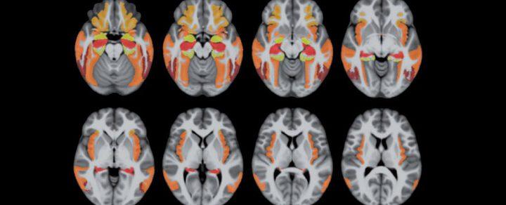 مرض شائع يصيب الدماغ شبيه بالزهايمر