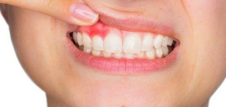أسباب خُراج الأسنان أهمها تراكم البكتيريا على اللثة