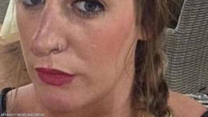 """صورة مروعة لامرأة بعد عملية نفخ شفاه """"منخفضة التكلفة"""""""