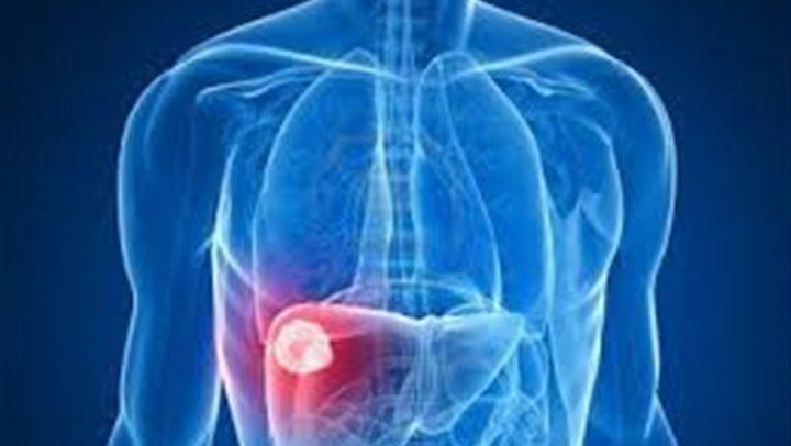 دراسة تحذر: مرضى السكر يواجهون خطر أمراض الكبد الدهني