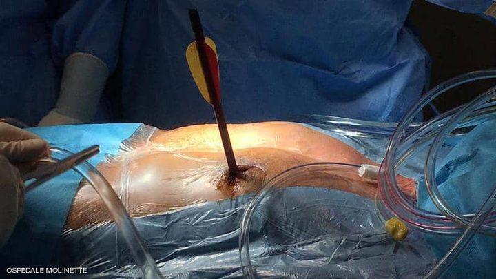 ذهب إلى المستشفى ماشيا بعد ان اصيب بسهم في قلبه !