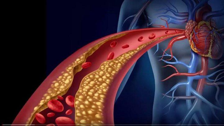 ابتكار دعامات فريدة للأوعية الدموية
