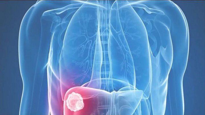 روسيا.. السماح باختبار دواء مضاد لسرطان المعدة