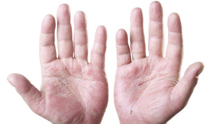 5 طرق تساعد علي منع انتشار الصدفية فى الجسم