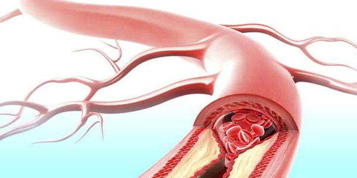 ماذا يعني تكسر الأوعية الدموية وكيفية منعها