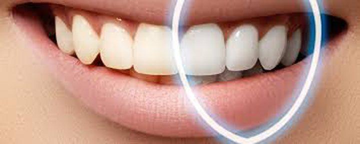 وصفات طبيعية لتبييض الأسنان في المنزل