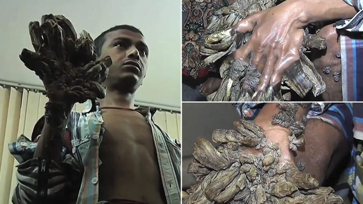 """""""رجل الشجرة"""" يتوسل لقطع يديه بعد خضوعه لـ25 عملية جراحية"""