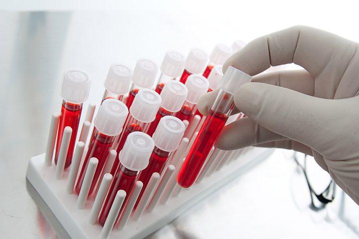 """هل يمكن قياس قوة """"الارتجاج في الدماغ"""" من خلال اختبار الدم ؟"""