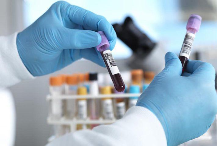تدني مستوى الكوليسترول الضار يزيد من خطر الاصابة بالسكتة الدماغية