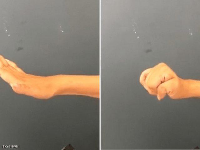 جراحة تعيد وظائف اليد والذراع للمصابين بالشلل