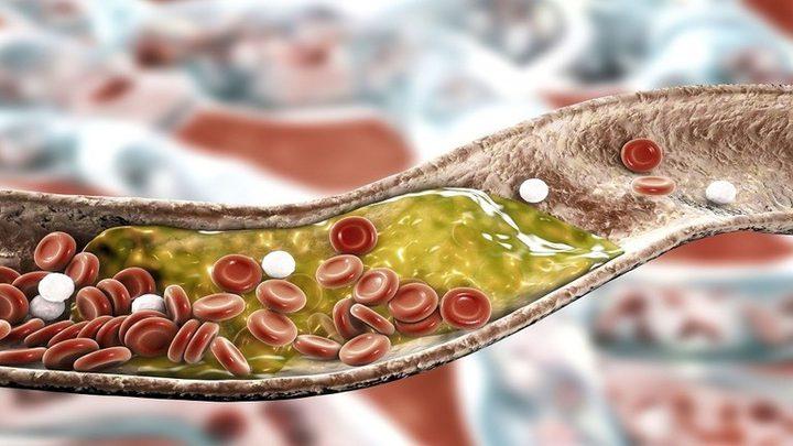 """دراسة تكشف خطر """"انخفاض"""" الكوليسترول!"""