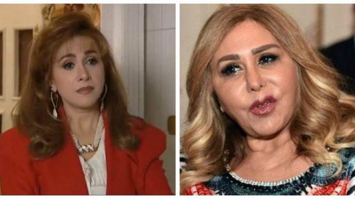 مها المصري تبكي بحرارة وتعلن ندمها بسبب التجميل الفاشل