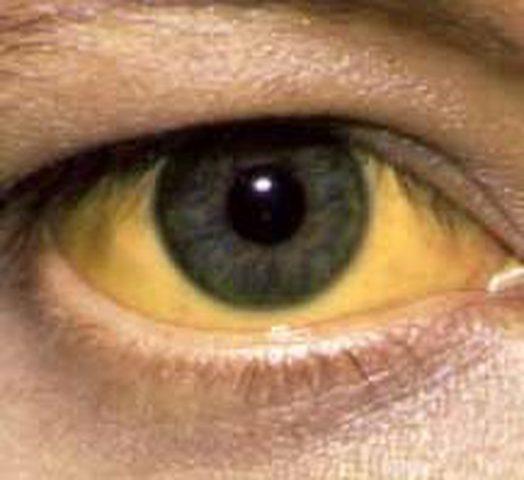 دراسة : اصفرار العين مؤشر على الإصابة بأمراض خطيرة