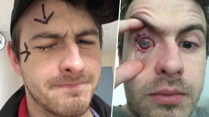 لاعب كرة قدم بريطاني يفقد بصره بسبب العدسات اللاصقة