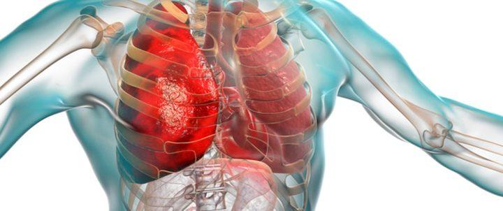 ما هي العوامل التي تزيد من خطر إصابتك بالالتهاب الرئوي