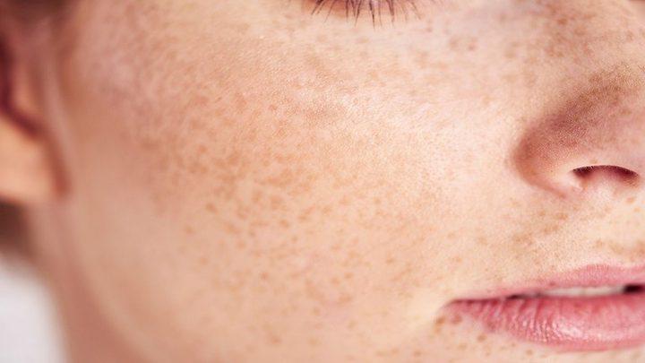 أشياء مفاجئة قد تؤثر على بشرتك دون أن تدركها