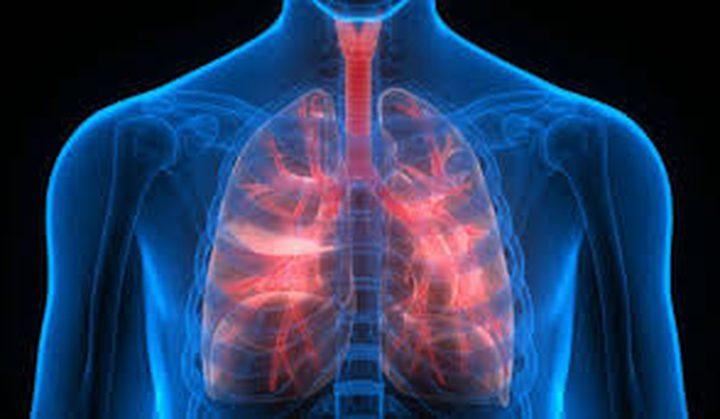 """ما هي أبرز أعراض حالة """"إنتفاخ الرئة الجراحي"""" ؟"""