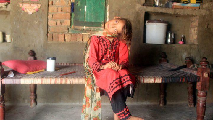 باكستان.. طفلة تعيش 11 عامًا بعنق ملتوي 90 درجة !