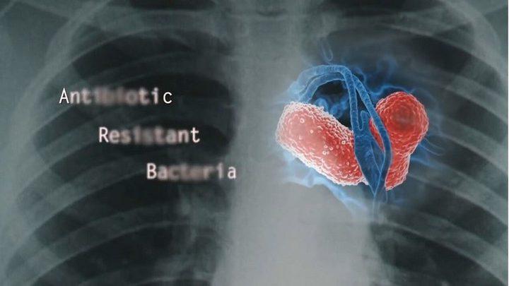 دراسة: المستشفيات تنقل بكتيريا خطيرة