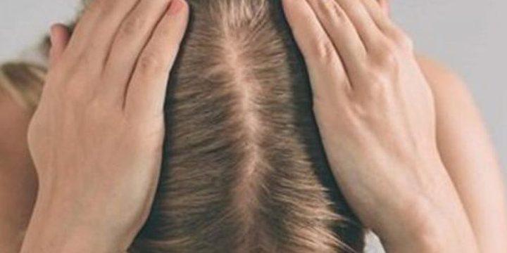 أهم أسباب وأعراض الإصابة بمرض الثعلبة