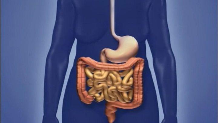 هذه هي الأعراض الرئيسية لسرطان الأمعاء