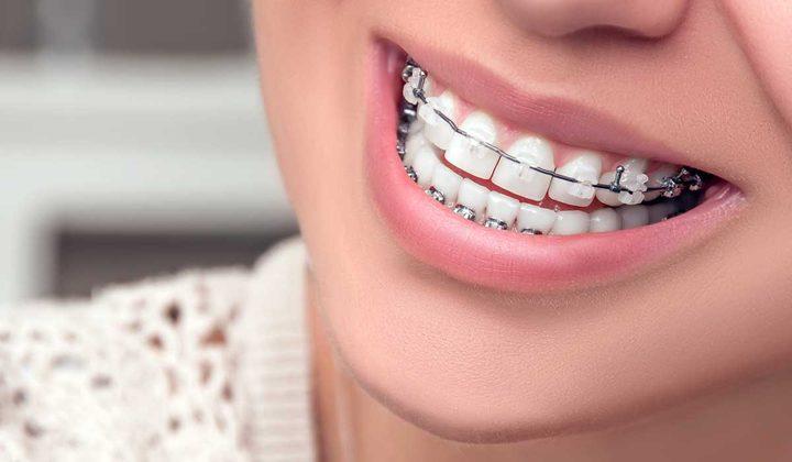 ما هي خطوات العناية بتقويم الأسنان ؟
