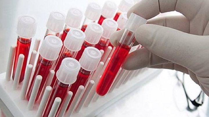 اختبار دم جديد لتشخيص الإصابة بارتجاج المخ خلال 15 دقيقة