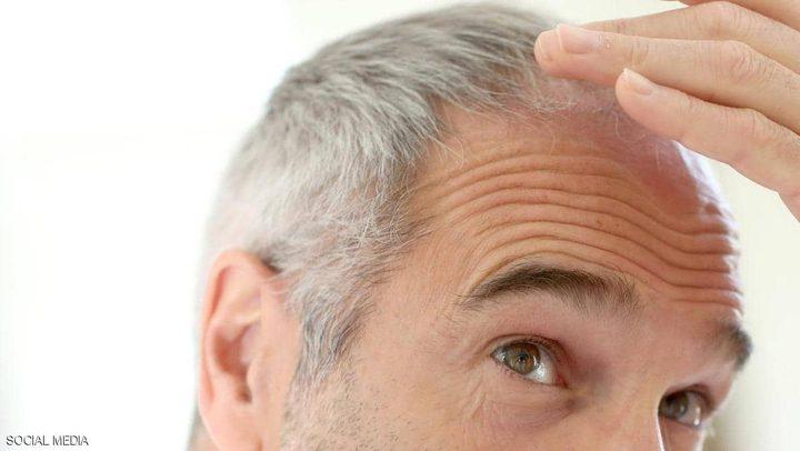 بهذه الطريقة تؤخر زحف الشعر الأبيض