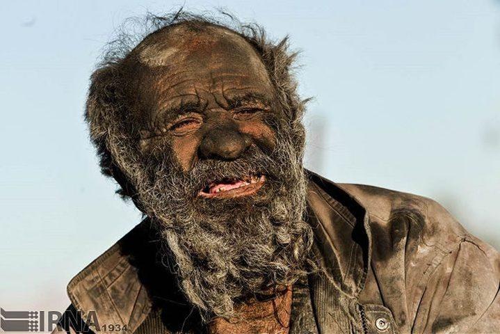مسن لم يغسل وجهه منذ 60 عاماً ويدخن براز الحيوانات وينام في حفرة