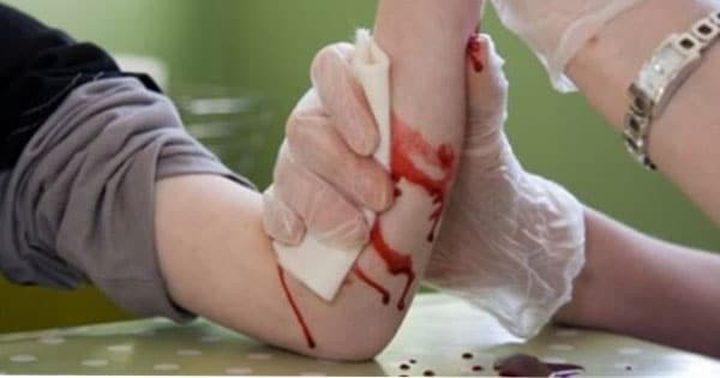 ضمادة إلكترونية تساعد في التئام الجروح أضعاف التقليدية
