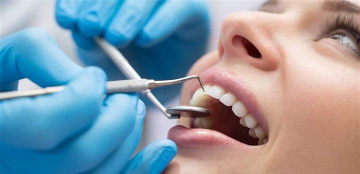 ما هي فوائد تنظيف الأسنان عند الطبيب ؟