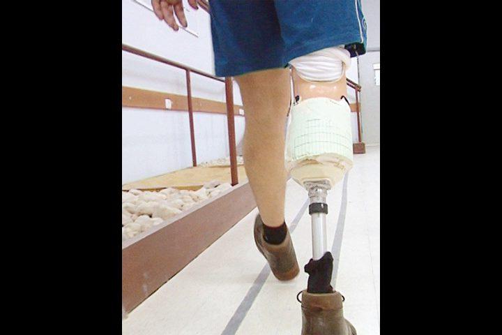 ابتكار جهاز جديد لمساعدة الأشخاص مبتوري الأطراف