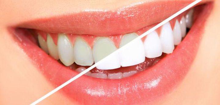 تبييض الأسنان رغم جهاز التقويم