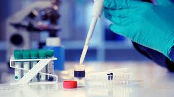 تطوير تحليل بسيط للكشف عن سرطان البنكرياس