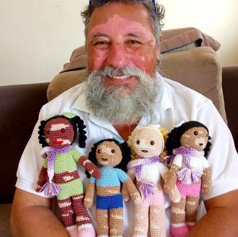 مسن يصنع عرائس لأطفال مرضى البهاق بالخيط والإبرة