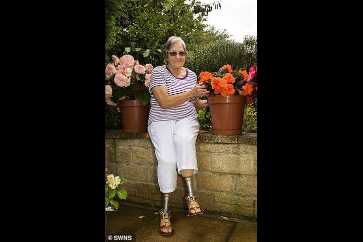 سيدة تتعرض لـ60 عملية جراحية بسبب لدغة حشرة !