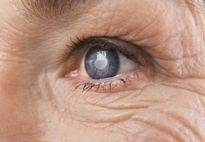 ما هي العلامات التي تدل على تكوين المياه البيضاء في العين ؟