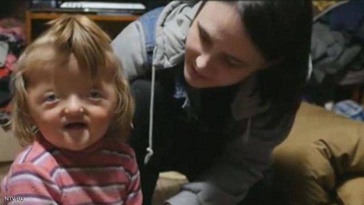 روسيا.. حضانة ترفض استقبال طفلة بسبب إصابتها بتشوه في الجمجمة !