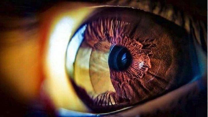التغييرات البسيطة بالعيون قد تدل على مشاكل صحية