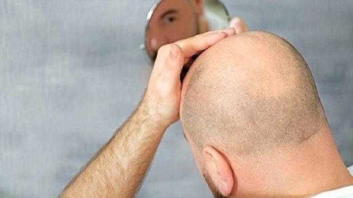كيف يؤثر التوتر والإجهاد على صحة الشعر؟
