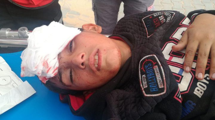 إصابات جراء قمع الاحتلال لمسيرات العودة شرق غزة