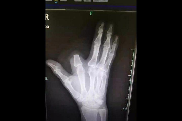 صيني يقطع إصبعه بسبب لدغة أفعى.. ثم يكتشف الكارثة !